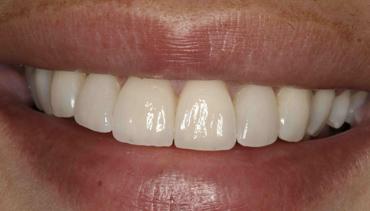 Cl nica dental sainz de murieta dentistas en pamplona for Oficina dni pamplona